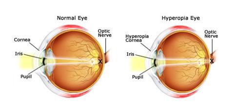 eyecare1